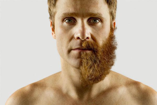 depilacion laser barba en pamplona