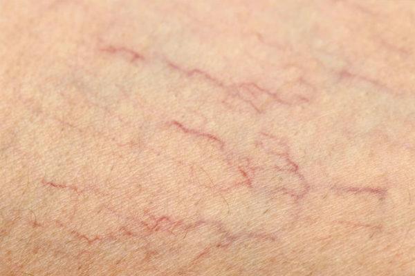 aranas vasculares en pamplona