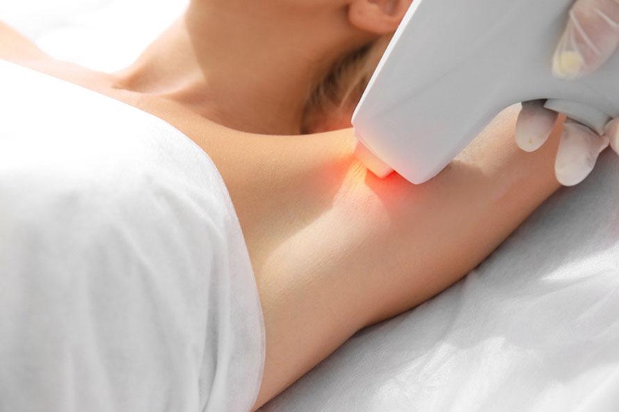 depilacion laser iturrama